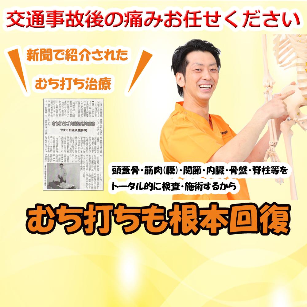 高崎市で交通事故治療ならやまぐち鍼灸整骨院へ